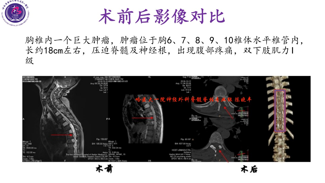 警惕不一样的颈肩腰腿痛=椎管内肿瘤)-陈晓丰_10.jpg