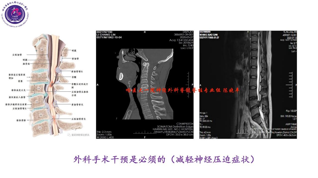 警惕不一样的颈肩腰腿痛=椎管内肿瘤)-陈晓丰_07.jpg