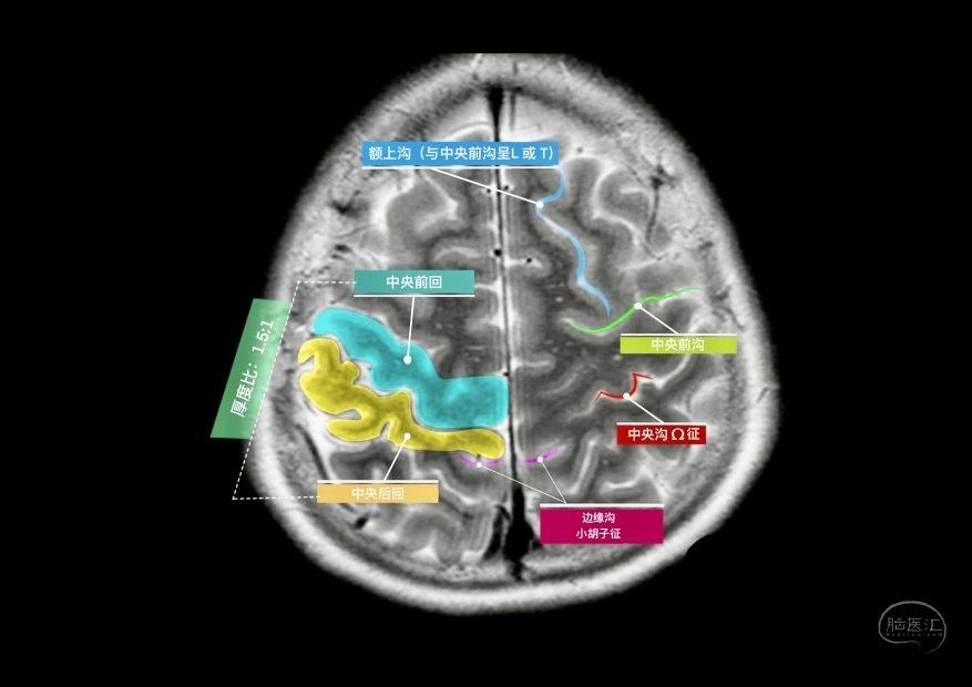 多彩的颅脑MR展示-徐桂兴.jpg